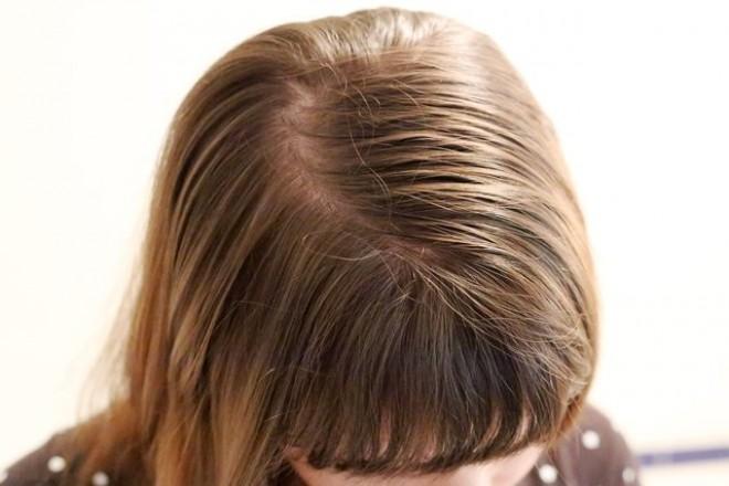 Zsírosodik a hajad és gyakran mosod? FELEJTSD EL!