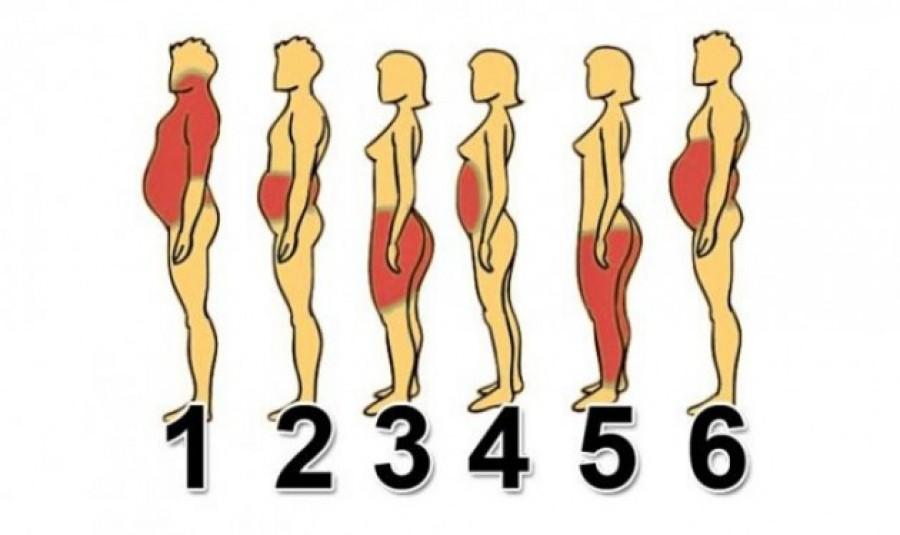 Válaszd ki az ábrák közül, hogy melyik testrészed hajlamos a hízásra!