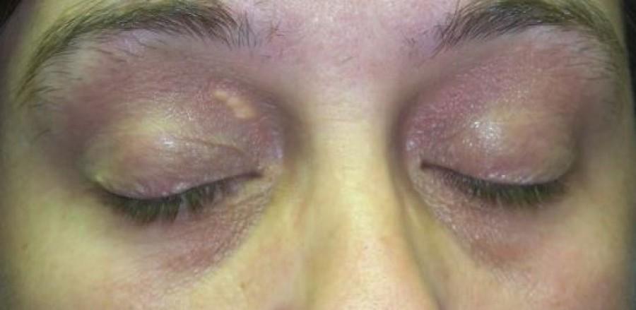 A szemhéj elszíneződése súlyos betegség veszélyére figyelmeztet!
