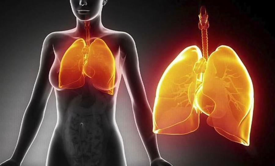 7 olyan tünet, ami tüdőgyulladásra utal
