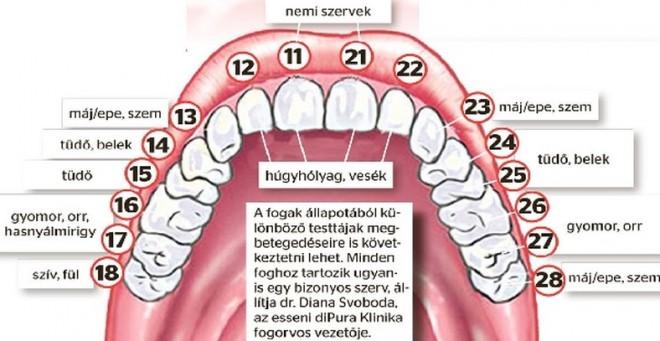 Ha romlik a fogad, a hozzá tartozó szerveddel is baj van!