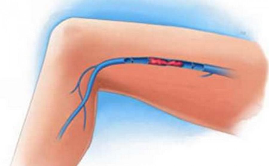 Ez az 5 tünet a trombózisra utal, és azonnal orvoshoz kell fordulni!