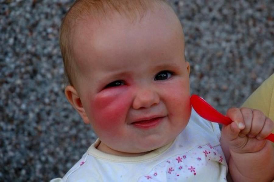 A háziorvosok egyesülete figyelmezteti a szülőket!