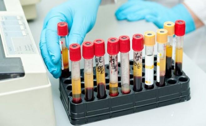 A laborvizsgálati eredmények magyarázata közérthetően